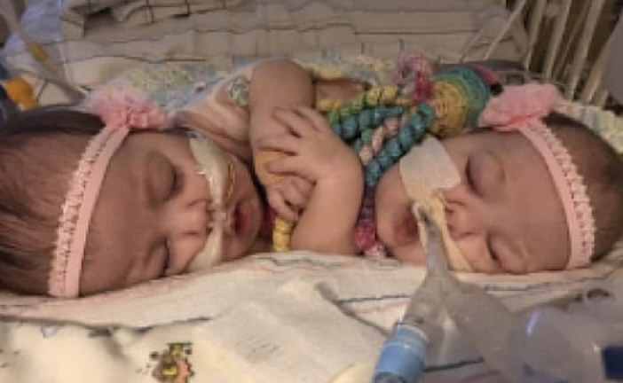 Conjoined Twins Separated by UF Health Surgeons Will Be Together for Christmas