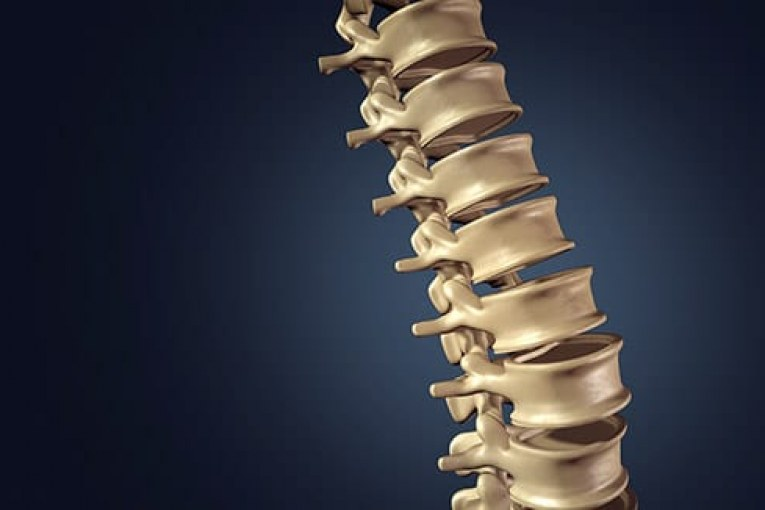 RTI Surgical® to Acquire Paradigm Spine - The Business