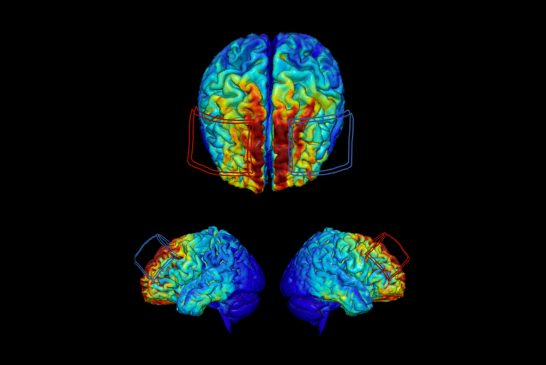UF researchers use AI to develop precision dosing for treatment aimed at preventing dementia