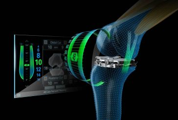 Smart Solution Aims to Improve Patient Outcomes and Satisfaction for Total Knee Replacement